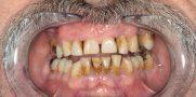 3_kozelrol_a_fogak