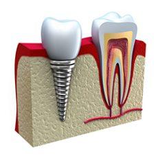 Anatomy of healthy teeth and dental implant in jaw bone.